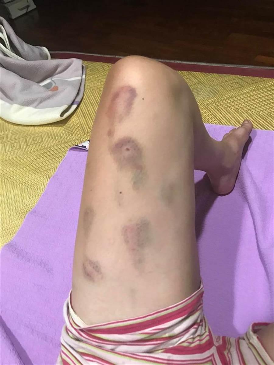 25歲身心障礙女學員手臂上滿是瘀傷。(譚宇哲翻攝)