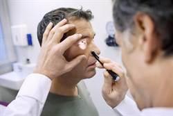 打玻尿酸除疤 壯年男竟失明眼球恐摘除
