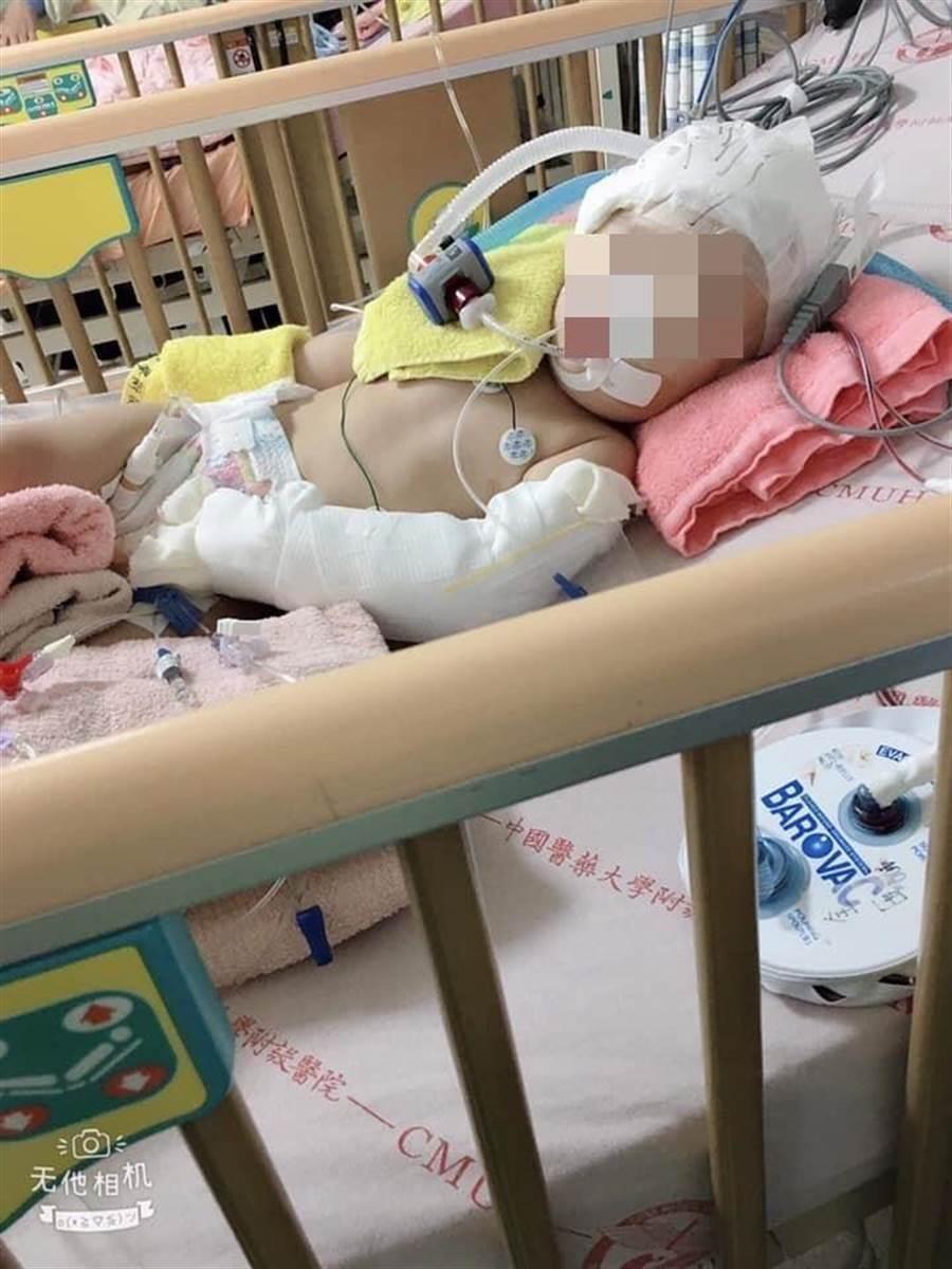 1歲陳姓女童疑遭保母虐待,21日腦部重傷出血送醫,至今仍昏迷,醫院表示,女童尚再搶救觀察,家屬悲慟將考慮拔管器捐。(照片翻攝臉書《爆怨公社》)