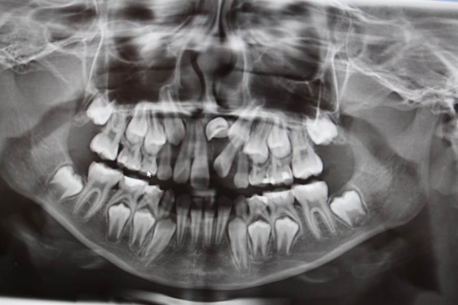9歲女童接受全口X光檢查,發現門牙生長方向異常及萌發空間不足,導致牙齒無法順利長出。(院方提供)