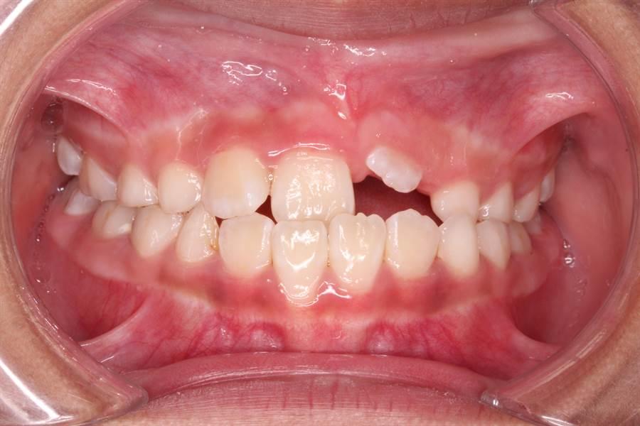 童綜合醫院口腔醫學部醫師楊瑋民使用矯正牽引方式,拉出埋在牙齦內的左上正中門牙。(院方提供)