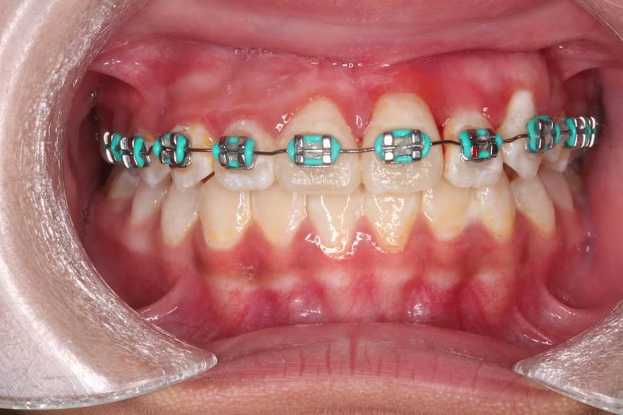 女童門牙歷經2年時間拉出至令人滿意的位置,之後戴牙套矯正。(院方提供)
