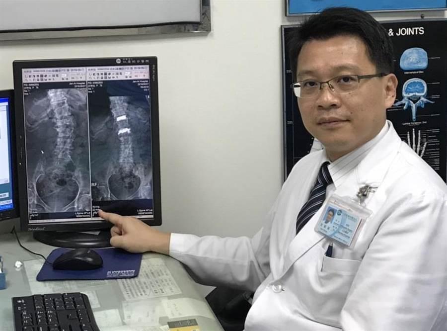 台中仁愛醫院骨科醫師張顧議指出,70歲婦人就醫時第12胸椎及第2腰椎骨折且造成脊椎側彎(左圖),經「微創高抗性低溫骨水泥灌注術」治療,已改善疼痛與側彎狀況(右圖)。(馮惠宜攝)