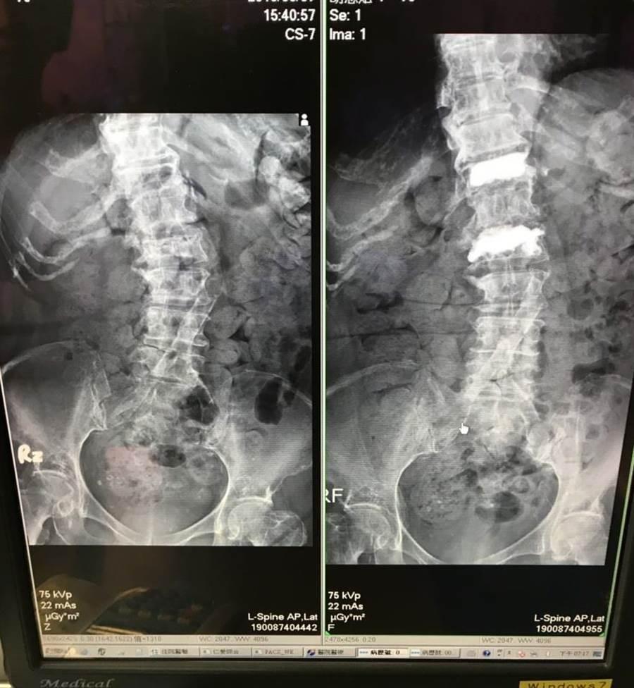 從治療前後影像看,可以明顯發現婦人第12胸椎及第2腰椎已強化(右),且不再脊椎側彎。(馮惠宜翻攝)