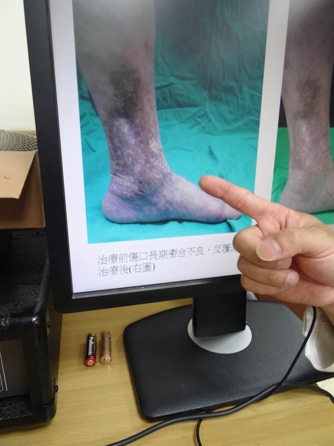 67歲歐女士到中山附醫治療前左小腿有嚴重靜脈曲張以及色素沈澱。(馮惠宜攝)