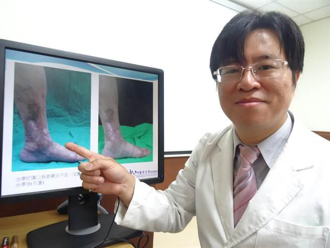 中山附醫皮膚科醫師林子鈞指出,67歲歐女士到中山附醫治療前左小腿有嚴重靜脈曲張以及色素沈澱。(馮惠宜攝)