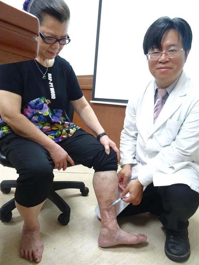 經泡沫注射治療後,歐女士左腳恢復良好。(馮惠宜攝)