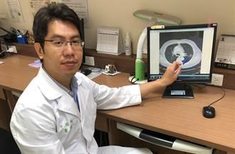 健檢發現肺結節 醫:小於2公分多為良性
