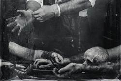 食人魔化乾屍60年 醫卻求家屬下葬