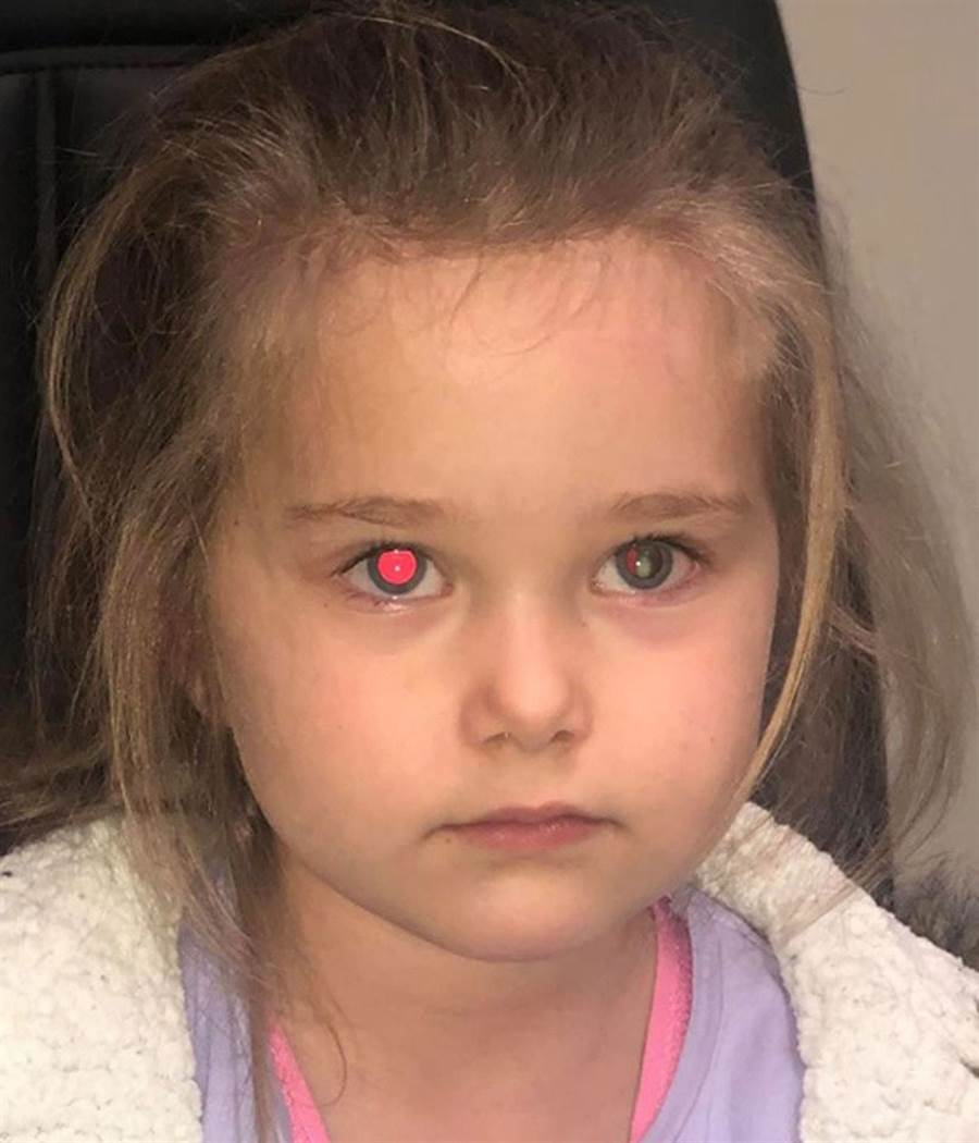 開啟閃光燈拍照,蘿拉左眼沒有出現正常的紅眼,反而有奇怪的白點。(翻攝Melissa Hine臉書)