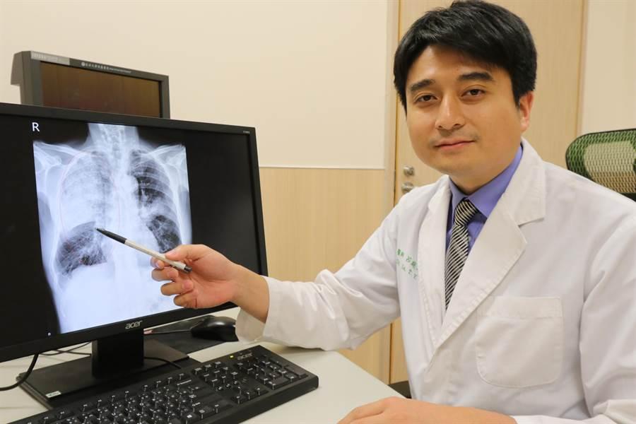 亞大醫院胸腔外科主治醫師呂庭聿指出肺炎位置。(林欣儀攝)