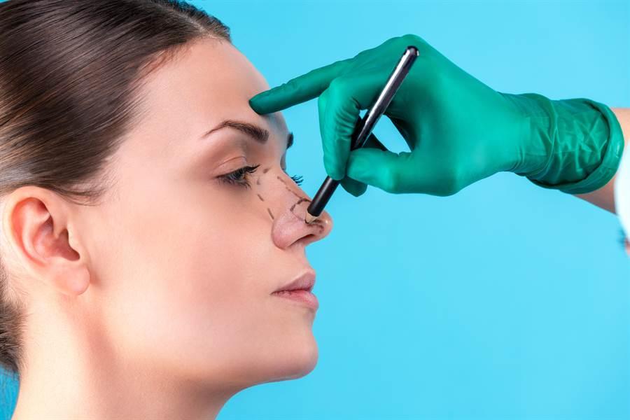 客戶控訴隆鼻導致失明,醫美診所醫師不起訴。(達志影像/shutterstock提供)