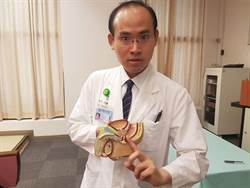 40歲男罹攝護腺癌 磁振造影保根
