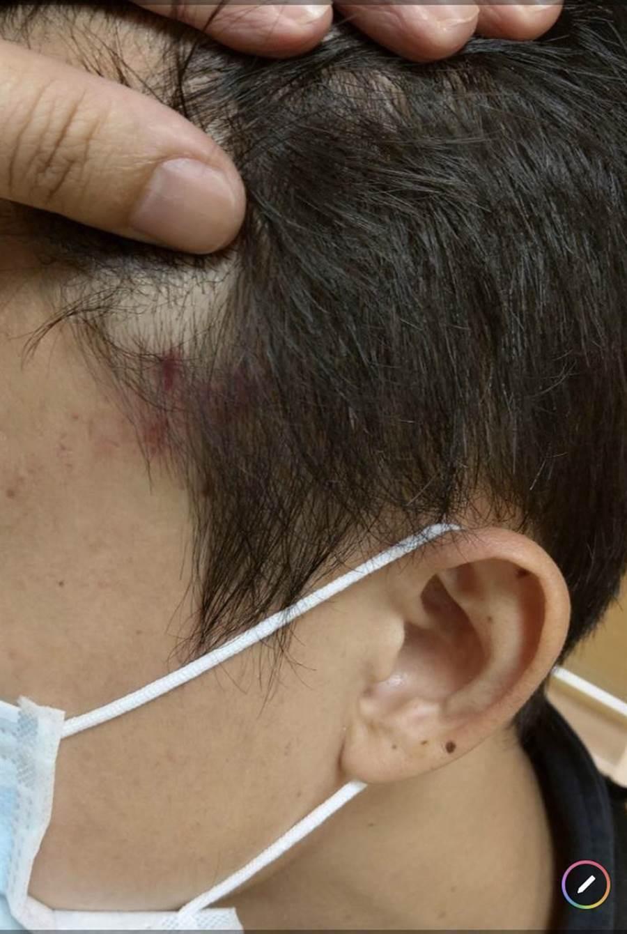 子彈從駕車的維安員警左側畫過,造成頭部4乘2公分的擦傷。(陳世宗翻攝)