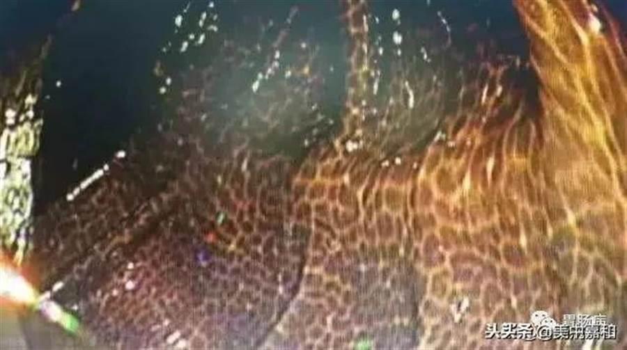 結腸黑變病長出豹紋斑。(圖/翻攝自微博)