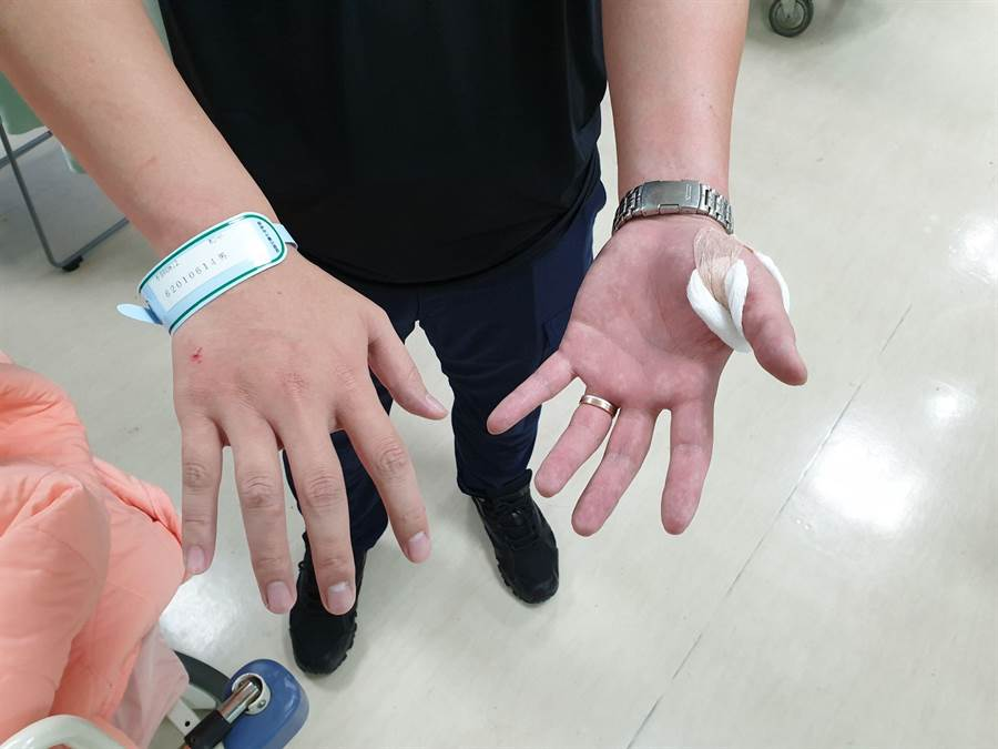 中正二分局泉州所員警李陏恩逮捕通緝犯被嫌犯持刀劃傷虎口。〔謝明俊翻攝〕
