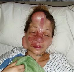 她臉部長滿「氣球」 戳破差點死