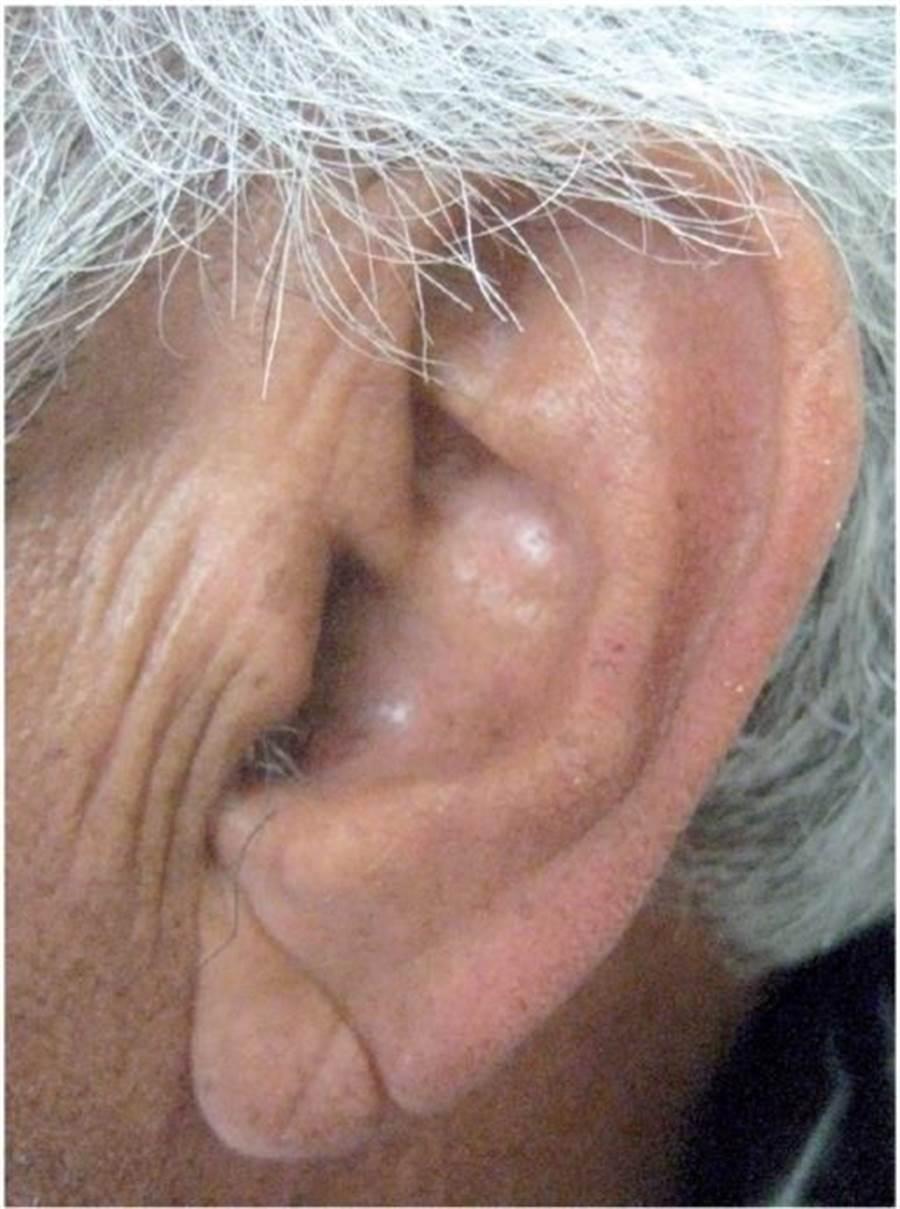 醫師指出,耳垂皺褶徵兆就像是「心臟科的面相學」,臨床上替病人診斷時,確實也會以此作為參考依據。(圖擷自史丹佛大學醫學院網頁med.stanford.edu)