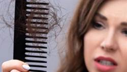 禿頭水腫容易餓這8症狀!醫師曝是少了它