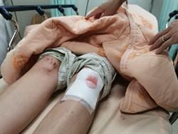 高中生騎車遭流浪狗衝撞 雙膝撕裂送醫開刀