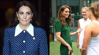 凱特王妃被爆料微整形?皇室出面回應了!