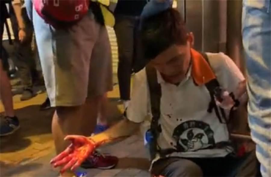 示威者有4名傷者送往瑪麗醫院急症室,情況穩定。(圖/東網)