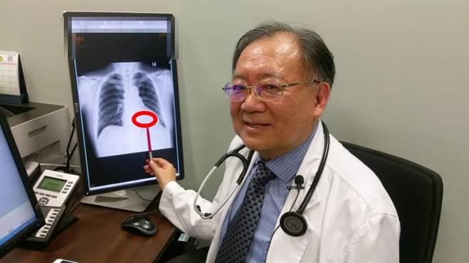 長安醫院心臟血管科醫師高宏門表示,喜愛運動的陳先生透過新一代膠囊型「無導線心臟節律器」治療,直接植於心臟中治療。(馮惠宜攝)