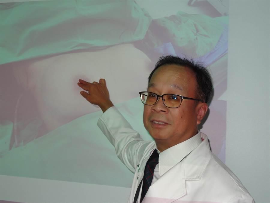 中山醫學大學附設醫院乳房外科主任葉名焮表示,透過手術方式改變可以保有年輕女性乳房外觀,也在乳癌治療後更自信。(馮惠宜攝)