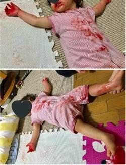 小孩大字型倒臥血泊中 媽嚇哭尖叫上前一看...崩潰