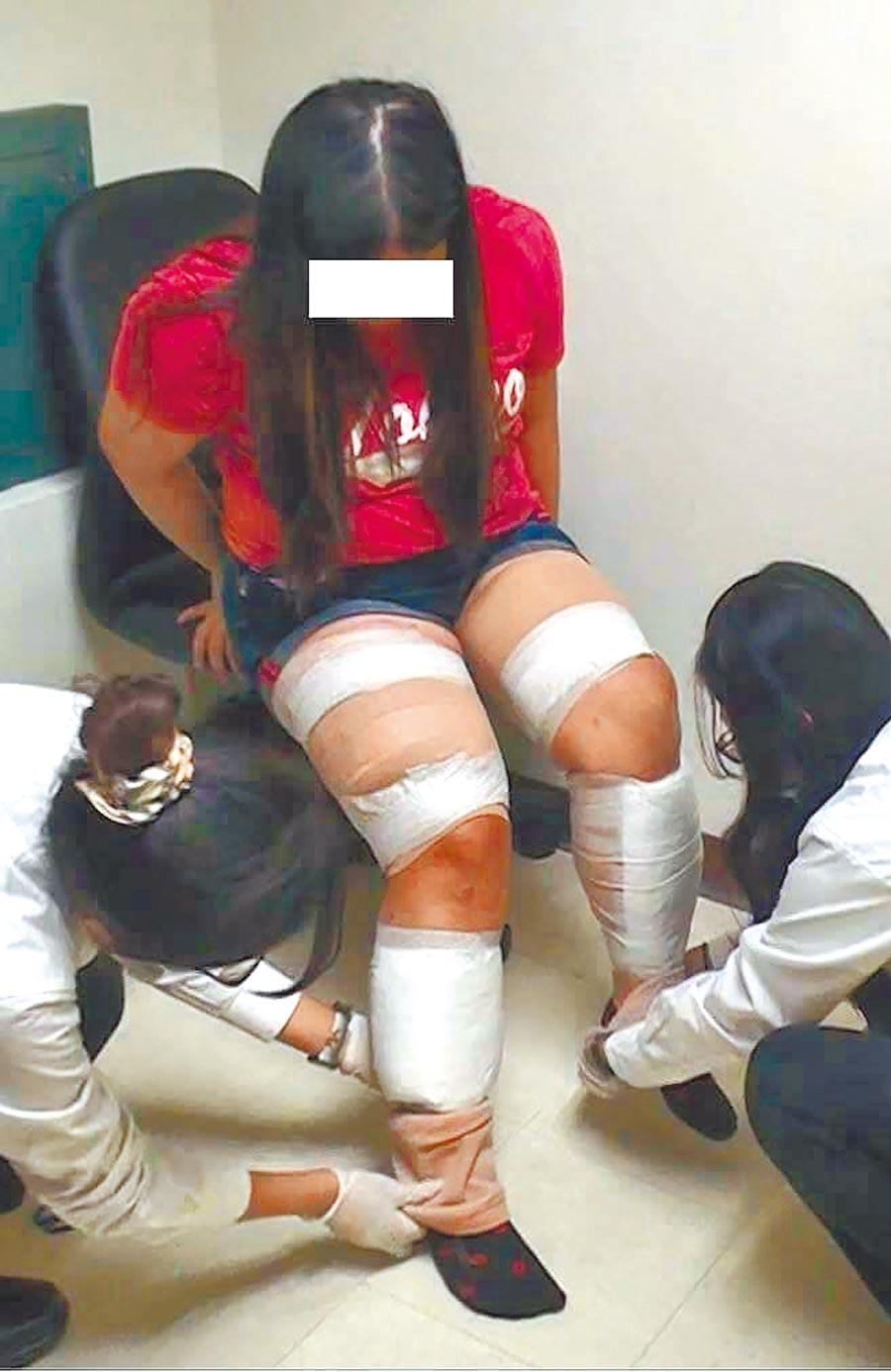 外国人来台涉毒案持续增加,图为马来西亚籍旅客涉嫌用弹性绷带将毒品绑在大小腿自高雄国际机场闯关遭查获。