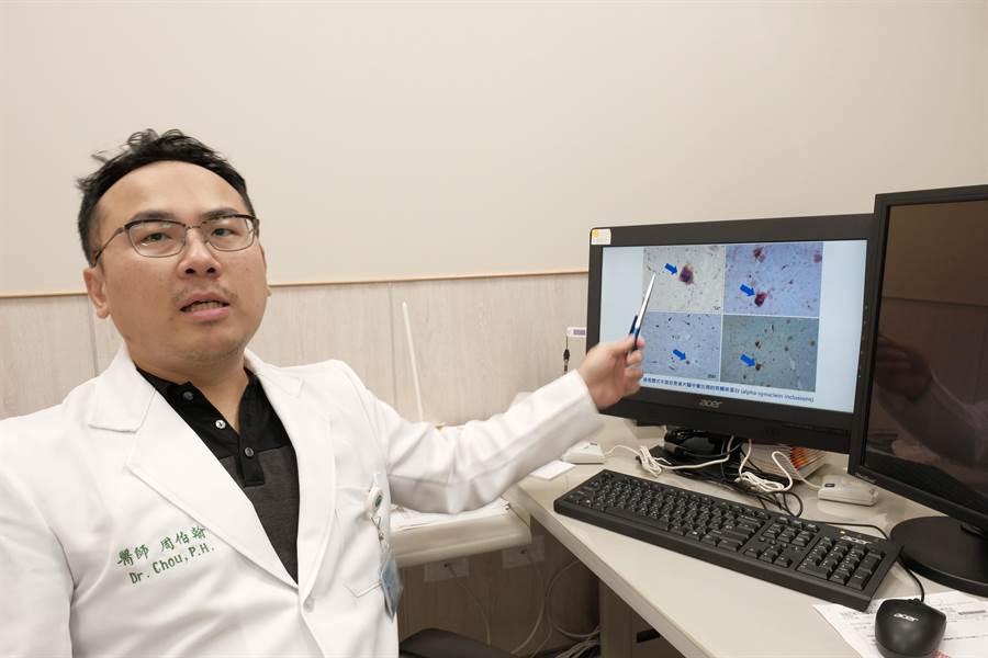 周伯翰醫師說,「路易氏體失智症」患者會有鮮明的視幻覺,大腦中會發現突觸核蛋白。(羅浚濱攝)