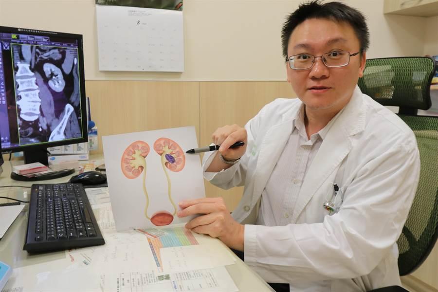 亞洲大學附屬醫院震波碎石室主任石欣衛建議民眾,生活飲食要遠離腎盂泌尿上皮癌的危險因子。(陳淑芬攝)