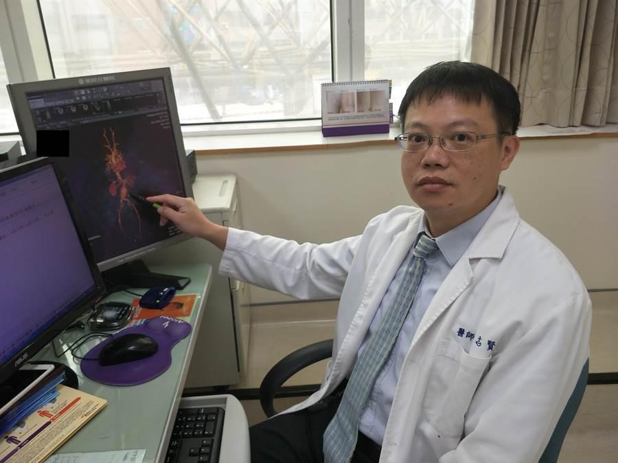李志賢醫師筆指觸即為腹主動脈瘤。(陳淑娥攝)