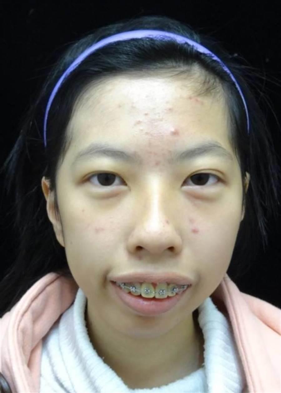 王小姐因咬合不正,下顎後縮,生活品質大受影響。(萬芳醫院提供)