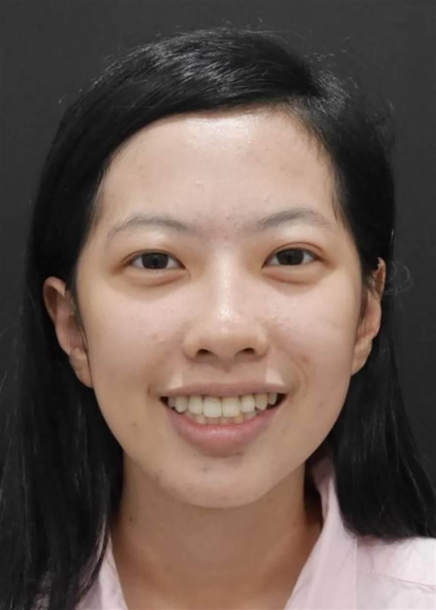 接受顳顎關節整合治療後,王小姐終於可以展現自信笑容。(萬芳醫院提供)
