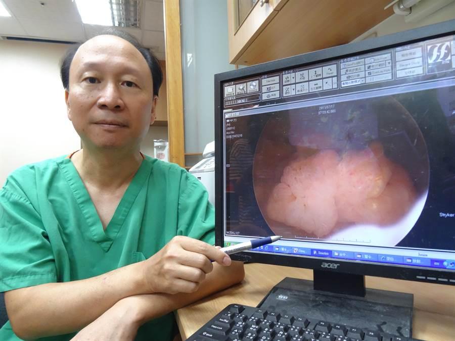 台中醫院泌尿科主任朱朗軒指出,63歲林姓男子經檢查發現是膀胱有兩公分腫瘤。(馮惠宜攝)