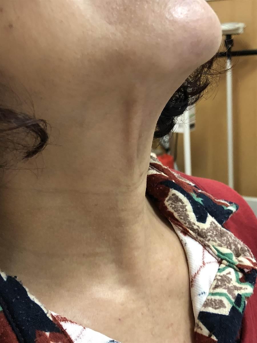 照經口內視鏡甲狀腺手術的外觀無疤無痕。(台北慈濟醫院提供)