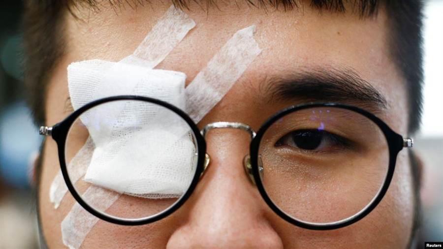 一名香港反送中抗议者带着眼罩,抗议警察8月12日在香港机场打伤一名示威者的眼睛。(摘自美國之音)