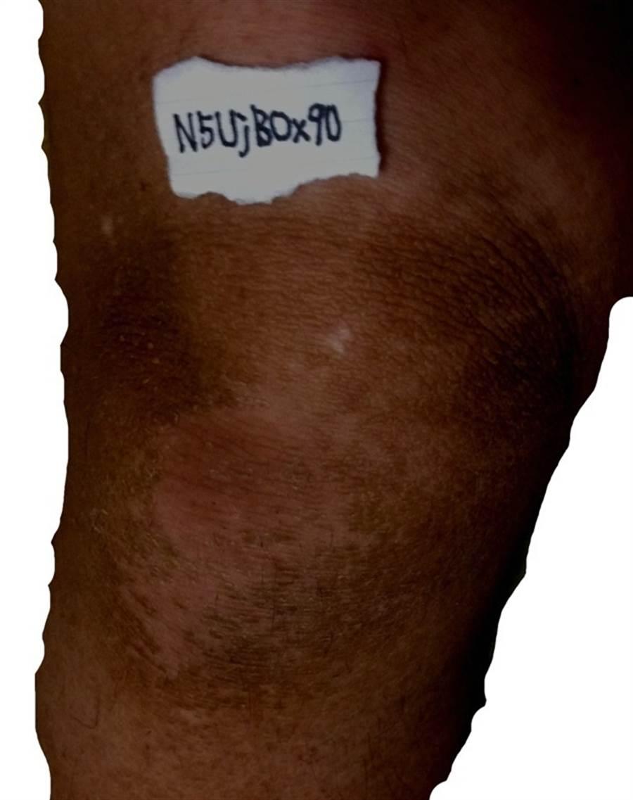 PO主曬出自己7年沒洗澡的膝蓋黑垢照(圖/翻攝自2ch)