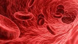 吃紅蚯蚓清血脂?專家說話了