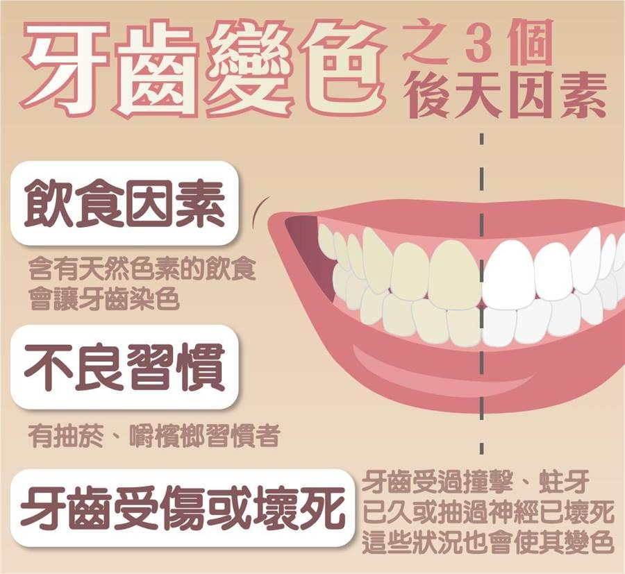 牙齒變色的3個後天因素。(食藥署提供)