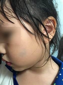 小孩遭毆臉頰誰動手? 教局學校介入調查