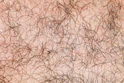 胃藥被生髮水汙染 16童全身長毛