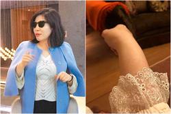 陳文茜爆險癱瘓中風 醫:小心免疫疾病5大警訊