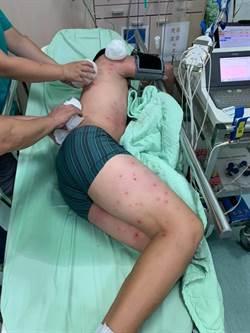 驚!虎頭蜂攻擊3國中生 1人遭叮100處傷口