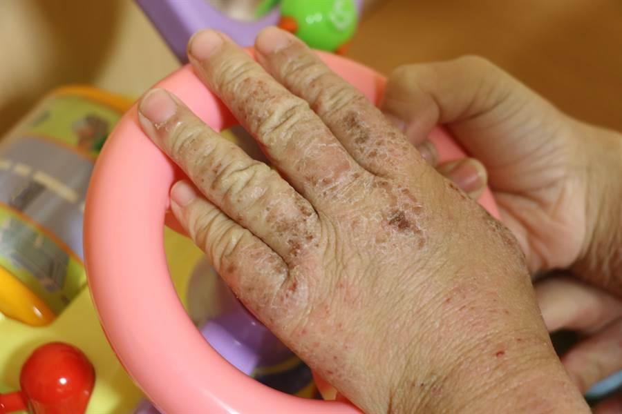 異位性皮膚炎治療前,7歲男童的皮膚抓到破皮。(台中慈濟醫院提供/王文吉台中傳真)