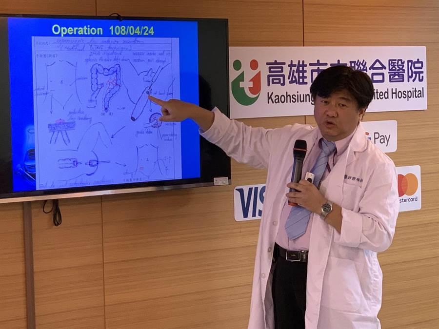 高市聯合醫院大腸直腸外科主治醫師陳培桓幫助直腸癌患者顏先生切除腫瘤,同時保全肛門。(柯宗緯攝)