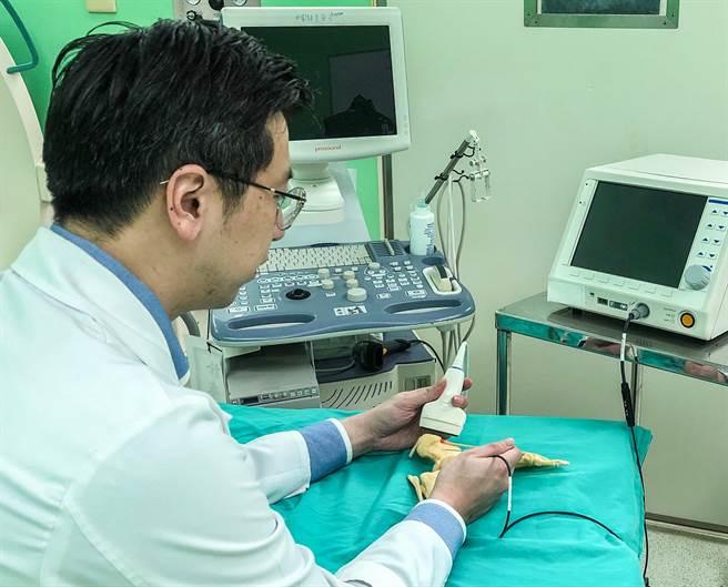 黃鼎鈞醫師示範高頻熱凝術治療足底筋膜炎示意圖。(台大醫院竹東分院提供/羅浚濱新竹傳真)