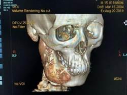 他牙痛1年多不理會 醫嚇傻:下顎被吃掉一半