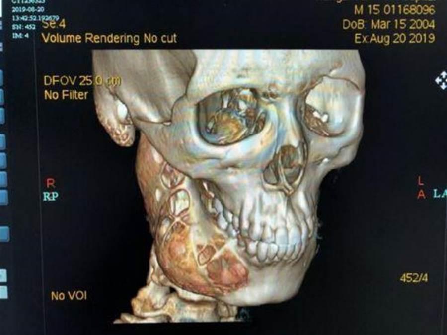 15歲少年牙齒痛一年多,没當回事,經醫檢查,臉部骨骼被吃掉一半。(圖/新浪網)